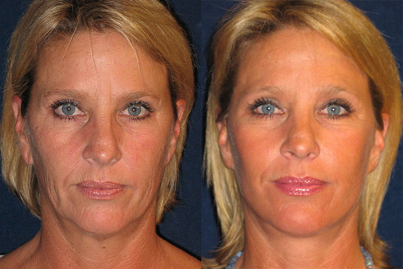 Face Before and After