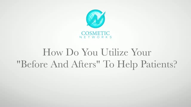 https://www.millercosmeticsurgery.com/wp-content/uploads/video/bna-tohelppatients.jpg