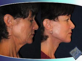 https://www.millercosmeticsurgery.com/wp-content/uploads/video/c4_v1.jpg
